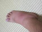 足の腫れ 070920
