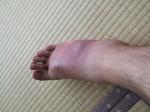 足の腫れ 070925