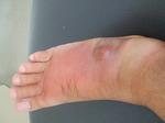 足の腫れ 070926