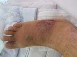 足の腫れ 070929